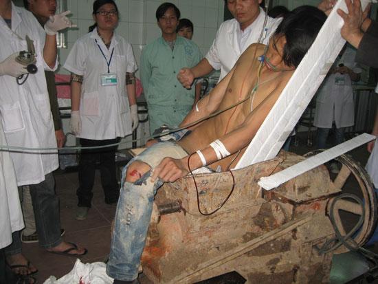 Những lỗi tai nạn lao động kinh hoàng